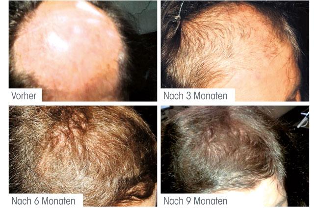 Der Haarausfall gribkowyje